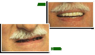 ایمپلنت دندان  صفحه اصلی impelant