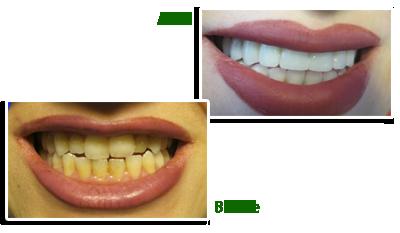 پروتز دندانی