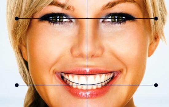 طراحی لبخند1  طراحی لبخند (Smile Design ) TARHE LABKHAND