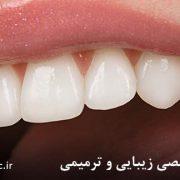 دندانپزشکی زیبایی چگونه به زیبایی دندانها کمک میکند؟ دندانپزشکی زیبایی چگونه به زیبایی دندانها کمک میکند؟ zebaei3 180x180