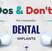 نوع برند ایمپلنت در موفقیت درمان چه تاثیری دارد؟ نوع برند ایمپلنت در موفقیت درمان چه تاثیری دارد؟ Dental Implants 180x178